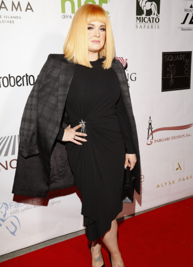 8th Annual Face Forward Gala - Kelly Osbourne